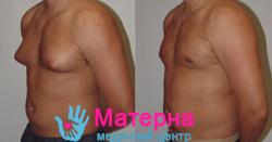 Фото Лечение гинекомастии у мужчин1