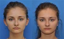 Пластична хірургія вух